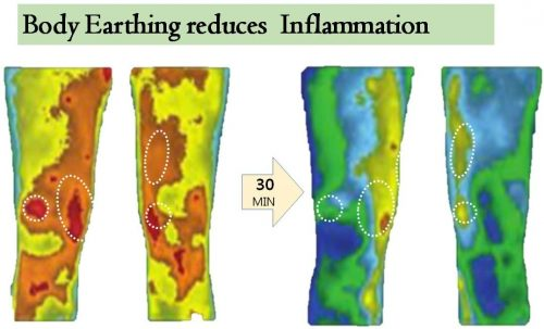 Body-Earthing-reduces-Inflamation-